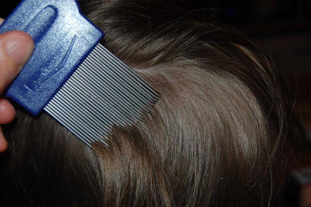 Вычесывание вшей на коротких волосах гребнем