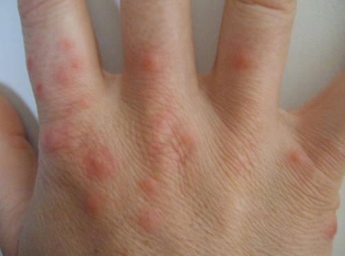 Места укусов платяных вшей - пальцы рук
