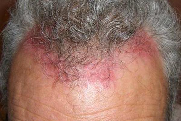 Химический ожог кожи после применения аптечного средства от вшей с нарушением инструкции