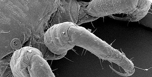 Лапка вши с крючочком - вид под микроскопом