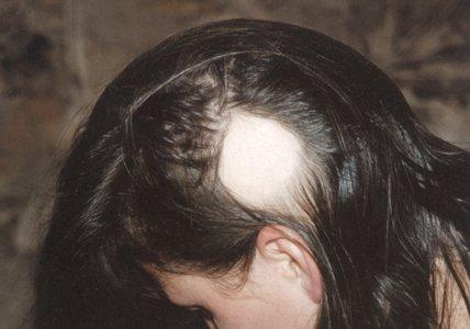 Выпадение волос в последствии не правильного применения химических противопедикулезных препаратов